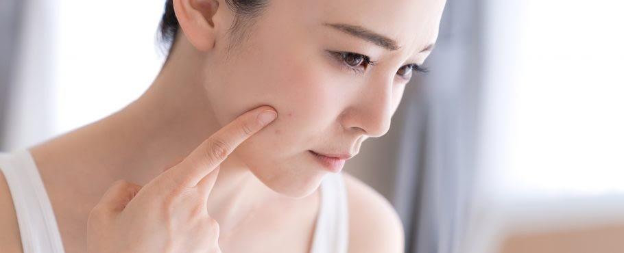 dermstetiq_skinconditions_acne